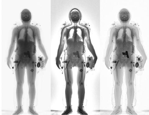 x-ray şüpheli şahıs tarama